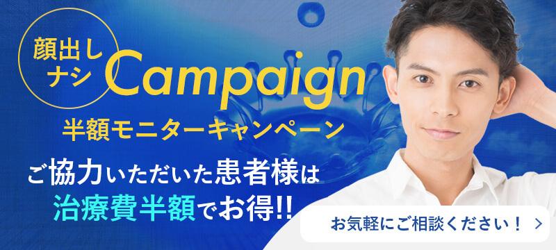 茨城・水戸のAGA治療で半額モニターキャンペーン