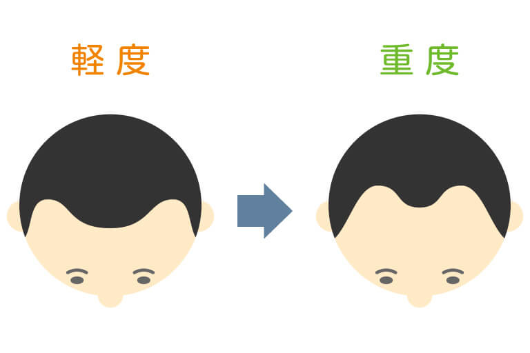 水戸市のAGAクリニックによるM字型脱毛の解説