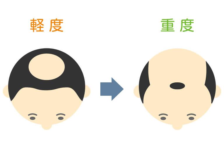 水戸市のAGAクリニックによるM字+頭頂部脱毛の解説