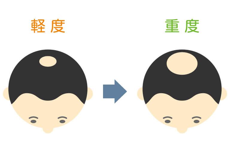 水戸市のAGAクリニックによる頭頂部脱毛の解説