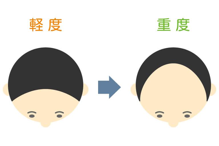 水戸市のAGAクリニックによるU字型脱毛の解説