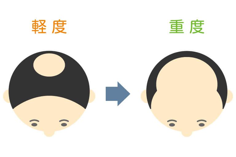 水戸市のAGAクリニックによるU字+頭頂部脱毛の解説