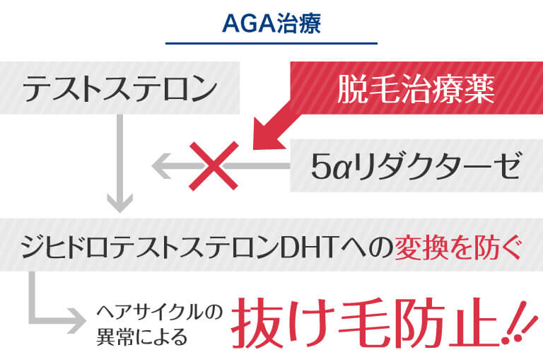 水戸市のAGAクリニックによるAGA・薄毛治療のプロセスの解説