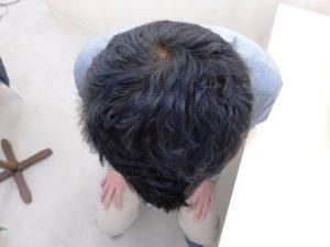 茨城県水戸市のAGA・薄毛治療事例(治療後)