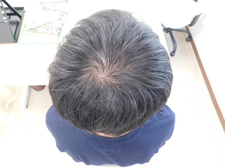 茨城県水戸市のAGA・薄毛治療事例(20代男性・治療前)