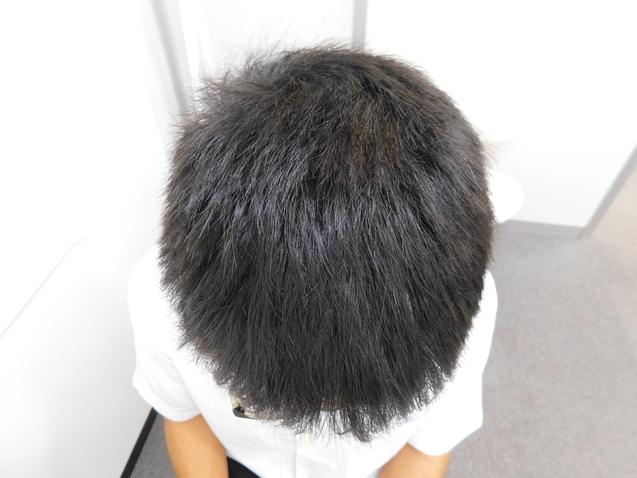 水戸市のAGA改善事例(20代男性・治療後)