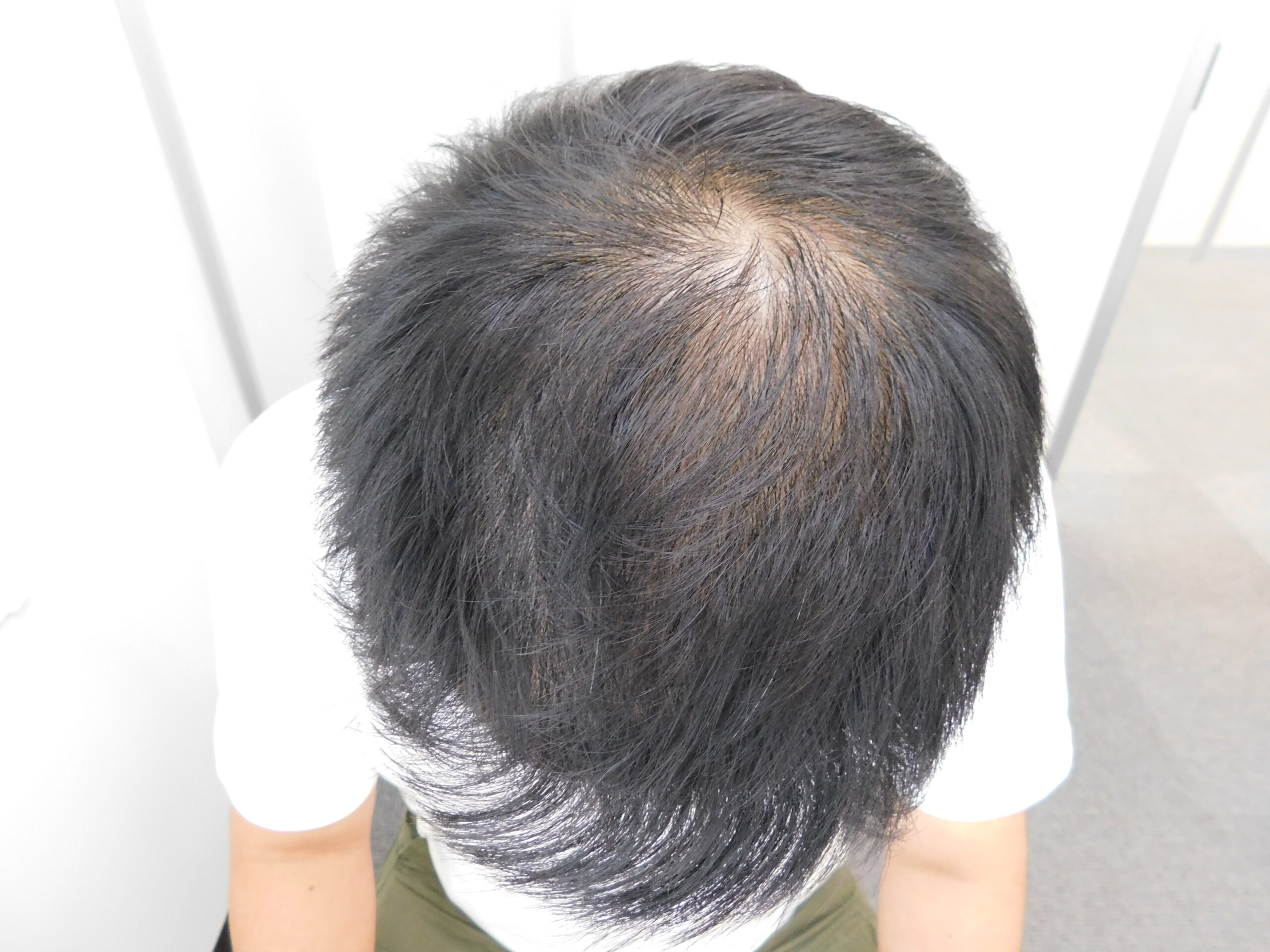 茨城県水戸市の発毛治療事例(40代男性・治療後)